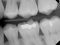 digital dental x-rays fallbrook ca