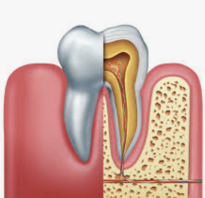 purpose of a root canal in fallbrook