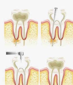 root canal treatment fall brook ca