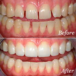 teeth bonding for gaps california