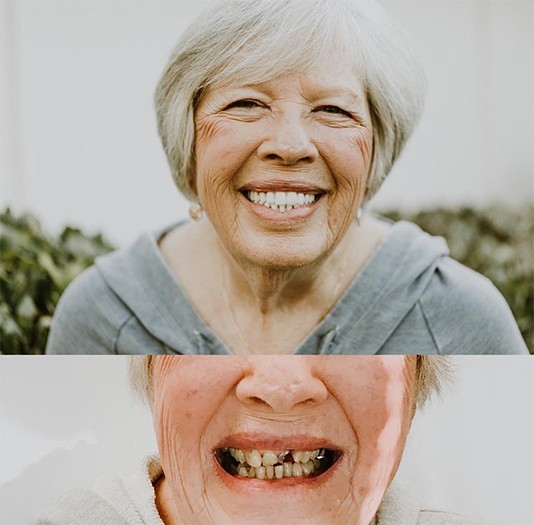 Side by side of woman showing decaying teeth and perfect teeth after all-on-4
