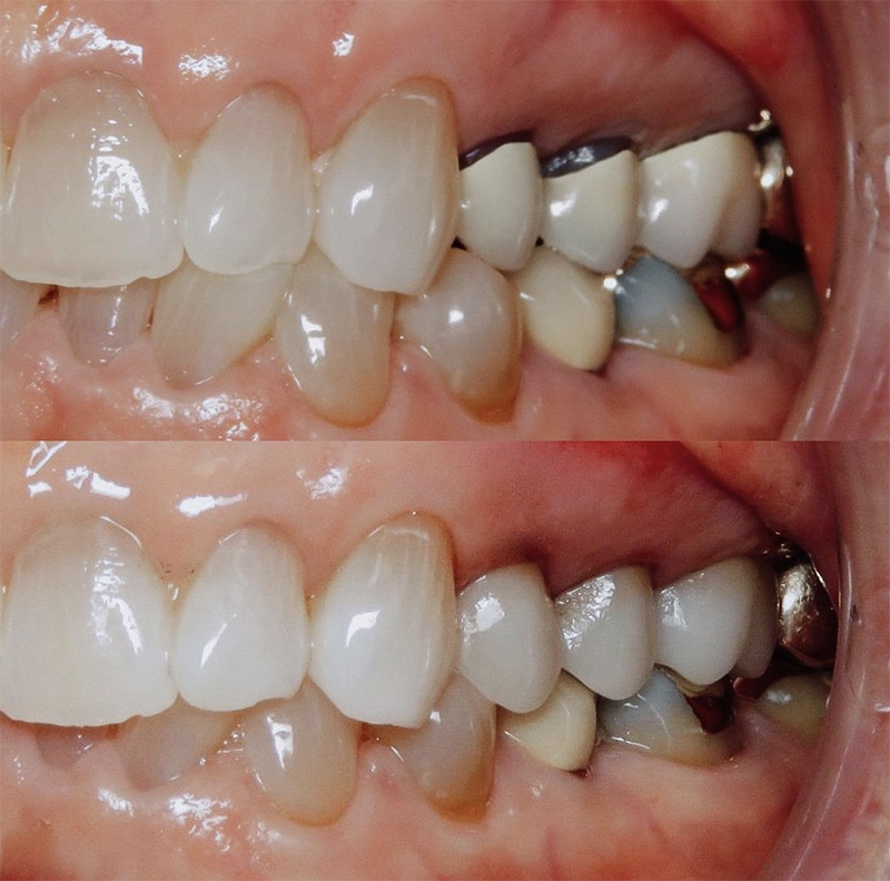 Before and after close of up veneers