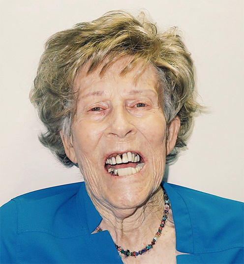 Woman with mouth open showing poor teeth
