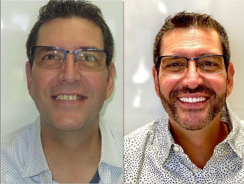 Before and after of smile makeover patient