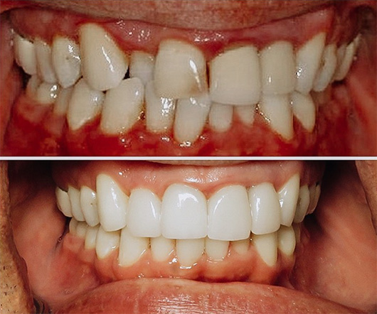 Before and after close of up a smile makeover